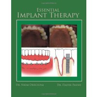 Essential Implant Therapy: A Patient's guide to understandi