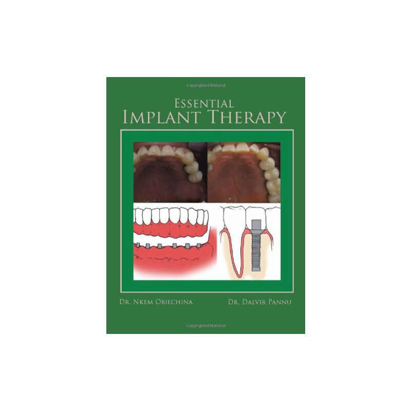 Essential Implant Therapy: A Patient's guide to understanding Implant dentistry [ISBN: 978-1463420413] 美国发货无法退货,约五到八周到货