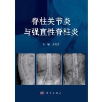 脊柱关节炎与强直性脊柱炎