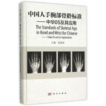 中国人手腕部骨...