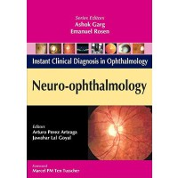 【预订】Neuro-Ophthalmology