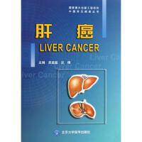 肝癌/中国常见癌症丛书 北京大学医学出版社
